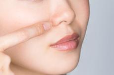 脱イチゴ鼻!鼻の毛穴の正しいケア方法は?